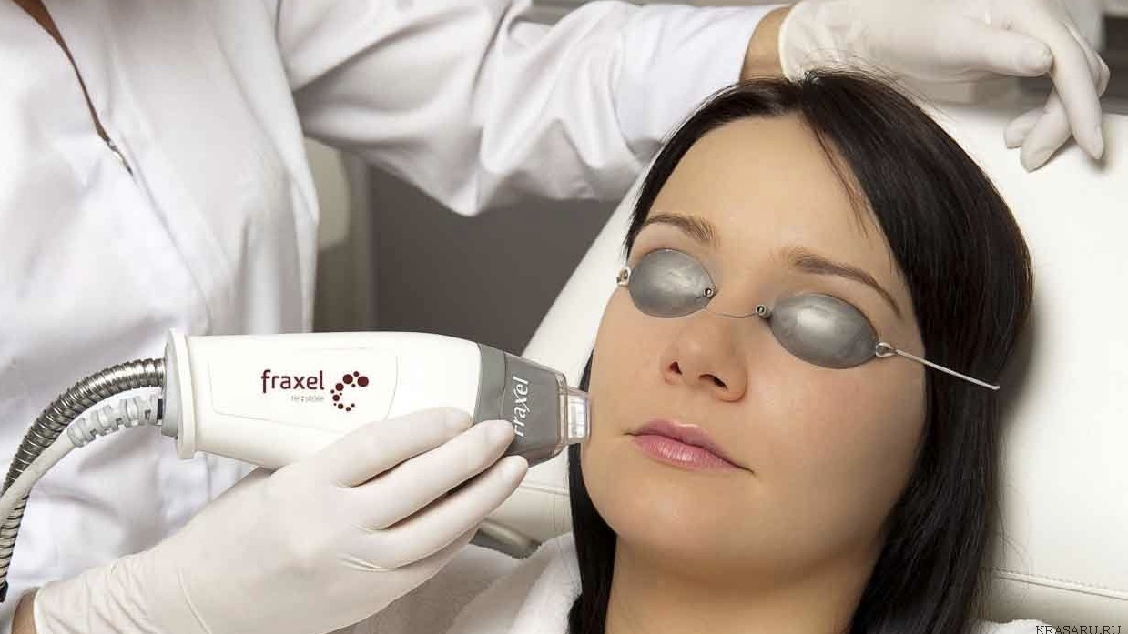 Leading Santa Monica Dermatologist Introduces the New FRAXEL™ Laser Treatment for Aging and Sun-Damaged Skin