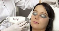Leading Santa Monica Dermatologist Introduces the New FRAXEL Laser Treatment for Aging and Sun-Damaged Skin
