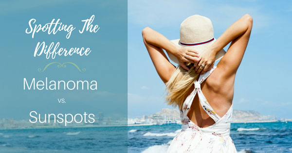 Spotting the Difference: How to Identify a Sunspot from Melanoma