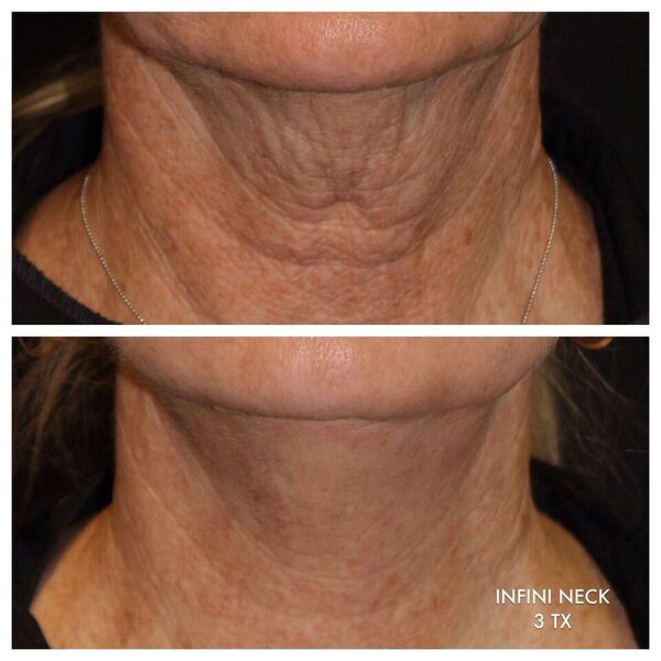 INFINI Skin Tightening Laser Results