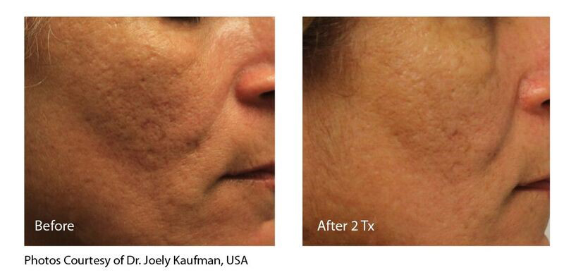 INFINI Acne Scar Before & After Photo
