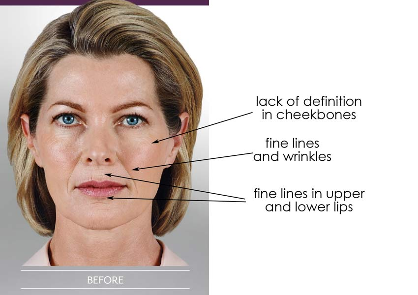 Your Guide to Juvederm Types: Voluma, Volbella & Vollure
