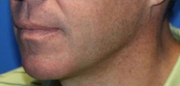 TempSure Skin Rejuvenation After