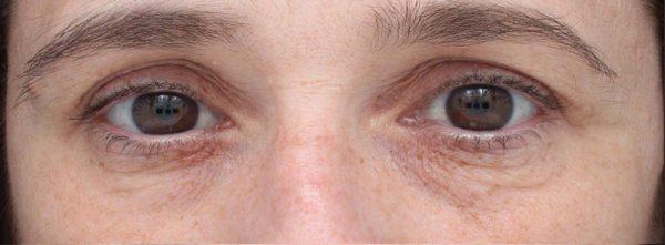 TempSure Skin Rejuvenation Before
