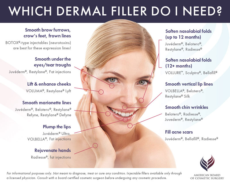 Which Dermal Filler Do I Need? | Types of Dermal Fillers | Mary Lee Amerian M.D. Dermatology