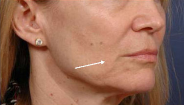 Thermage and Botox Before and After Pictures | Santa Monica Laser