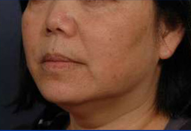 Thermage and Botox Before and After Pictures | Santa Monica